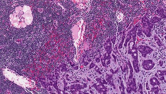 Cancerdu sein3
